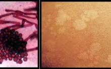 Micoses Superficiais e Cutâneas – Fungos, Causas e Tratamentos