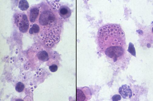 Macrófago com Histoplasma - Fonte: health.auckland.ac.nz