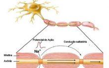 Doenças Desmielinizantes: Esclerose Múltipla, Guillain-Barré e Devic
