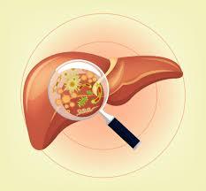 Hepatites Crônicas – Quadro Clínico e Diagnóstico